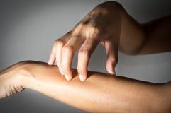 Kobiety przedramienia chrobotliwa skóra Fotografia Royalty Free