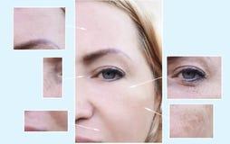 Kobiety twarz marszczy cierpliwą korekcję przed i po starzenie się procedurami, pigmentaci dermatologia fotografia stock