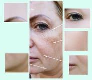 Kobiety twarz marszczy pacjenta przed i po starzenie się procedurami, pigmentaci dermatologia zdjęcia royalty free