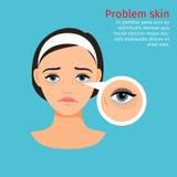 Kobiety twarzy oka czerni problemowi okręgi royalty ilustracja