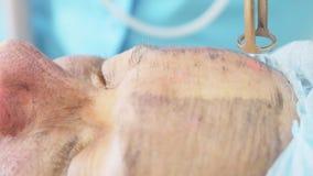 Kohlenstoffgesichtsbehandlungsbehandlung Laser-Impulse reinigen die Haut des Gesichtes Hardware Cosmetologybehandlung Kohlenstoff stock video footage