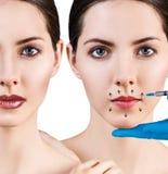 Kolaż piękna kobieta dostaje pięknu twarzowych zastrzyki Fotografia Stock