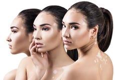 Kolaż piękna kobieta z vitiligo chorobą fotografia stock