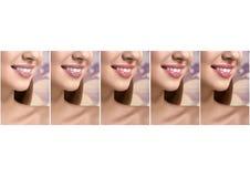 Kolaż pięknych kobiet uśmiechnięty zakończenie w górę strzałów fotografia stock