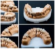kolażu stomatologiczny modelów prosthesis zdjęcia royalty free