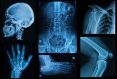 Kolaży promieniowań rentgenowskich wizerunek istota ludzka Zdjęcia Royalty Free