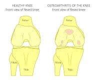 Kolanowego złącza problem_osteoarthritis Obraz Royalty Free