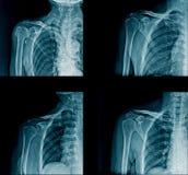 Kolekci promieniowania rentgenowskiego naramienny wizerunek zdjęcie royalty free