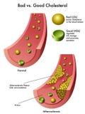 Kolesterol Arkivbilder