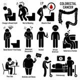 Kolon och ändtarms- Colorectal cancer Clipart royaltyfri illustrationer