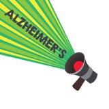 Konceptualna ręka pisze pokazywać Alzheimer s jest Biznesowego fotografia teksta Postępowy umysłowy marnienie który może zdarzać  ilustracja wektor