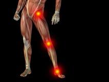 Konceptualny ciało ludzkie anatomii ból na czerni Zdjęcie Royalty Free