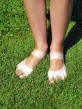 Konstigt brunbrända ben på lawnen Arkivbild