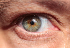 Kontaktlins på öga Arkivfoto