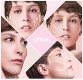 Konzept der Hautplastischen chirurgie Frauengesicht mit Kennzeichen und Pfeilen stockbild