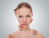 Konzept der kosmetischen Effekte, Behandlung, Hautsorgfalt Lizenzfreies Stockbild