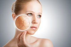 Konzept der kosmetischen Hautpflege. Gesicht der jungen Frau mit trockenem Ski Stockbild