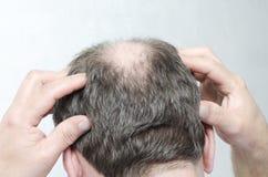 Konzept des Haarausfalls Mann, der eine Kopfmassage als Behandlung des Zurücktretens tut stockfotografie