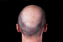 Kopf des kahlen Mannes Stockbilder