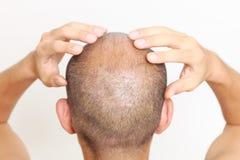 Kopfhautmassage Stockfoto