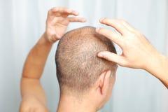 Kopfhautmassage Stockfotos