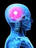 Kopfschmerzen Lizenzfreie Stockfotos