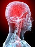 Kopfschmerzen/Migräne Stockfotos