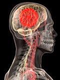 Kopfschmerzen/Migräne Stockfotografie