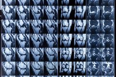 Kopiering för magnetisk resonans MRI av den mänskliga knäleden för medicinsk diagnos royaltyfri bild