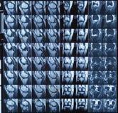 Kopiering för magnetisk resonans MRI av den mänskliga knäleden för medicinsk diagnos arkivfoton
