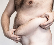 Korpulenz - fetter Bauch Stockfotos