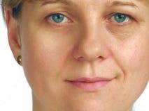Korrektur der Knicken auf Hälfte des Gesichtes lizenzfreies stockbild
