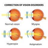 Korrektur der verschiedenen Augenvisionsstörung lizenzfreie abbildung