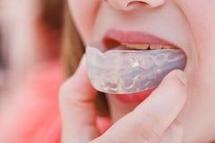 Korrektur des Zahnbisses durch orthodontischen Trainer lizenzfreie stockfotografie