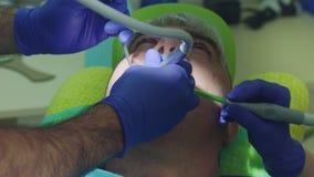 Korzeniowego kanału traktowania proces Doktorscy ręki musztrowania zęby zbiory