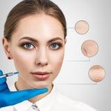 Kosmetische injectie aan het vrij vrouwelijke gezicht Royalty-vrije Stock Afbeelding