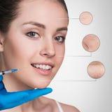 Kosmetische injectie aan het vrij vrouwelijke gezicht Stock Fotografie