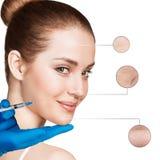 Kosmetische injectie aan het vrij vrouwelijke gezicht Stock Afbeelding
