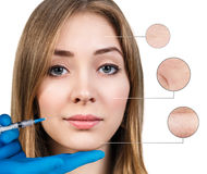 Kosmetische injectie aan het vrij vrouwelijke gezicht Royalty-vrije Stock Foto