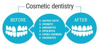 Kosmetische Zahnheilkunde vorher nachher lizenzfreie abbildung