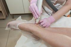 Kosmetisches Verfahren, zum der Zustandes der Haut des L zu verbessern Lizenzfreies Stockbild