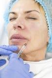 Kosmetisk behandling med injektionen Arkivfoton