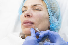 Kosmetisk behandling med injektionen Arkivbilder