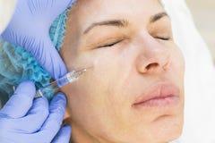 Kosmetisk behandling med injektionen Fotografering för Bildbyråer