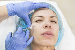 Kosmetisk behandling med injektionen Royaltyfri Foto