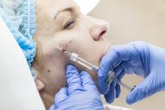 Kosmetisk behandling med injektionen Royaltyfria Foton