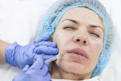 Kosmetisk behandling med injektionen Arkivbild