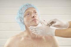 Kosmetisk injektion för moget manhäleri med injektionssprutan i klinik royaltyfri fotografi