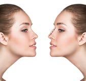 Kosmetisk näskirurgi för kvinna före och efter royaltyfria bilder