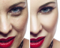 Kosmetiskt tillvägagångssätt för kvinnaframsida före och efter Ansikts- cosmetologysjukvård eller plastikkirurgibegrepp arkivfoto